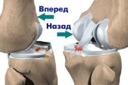 Виды растяжения колена