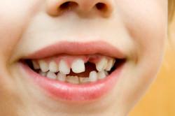 Зубные травмы у детей