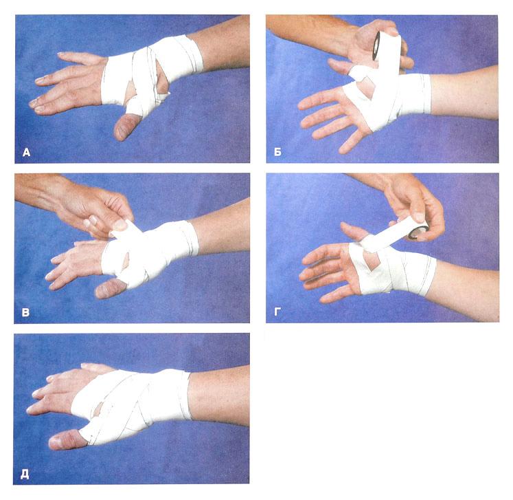 Перелом пальца руки и его симптомы