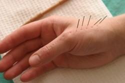 Иглотерапия кисти руки после перелома