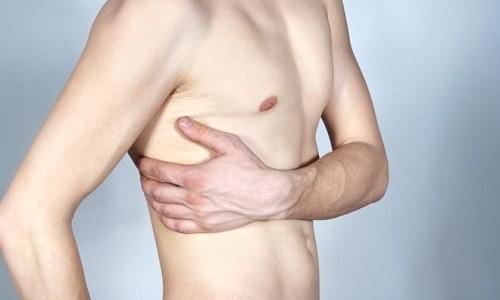 Проблема перелома ребра