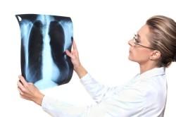 Рентген при переломе ребер