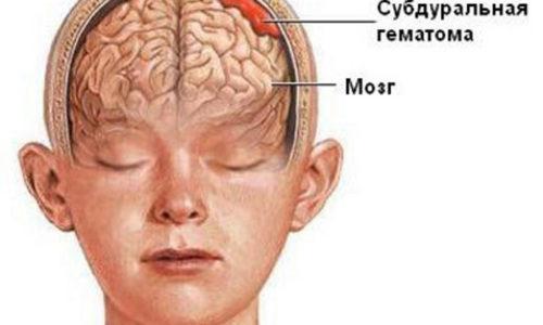 головная боль при васкулите