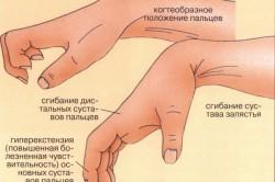 Изображение - Удары суставом кисти diagnostika-viviha-kisty-250x166