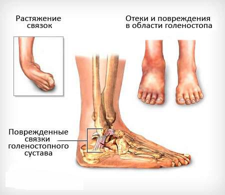 растяжение сухожилия на ноге под коленом