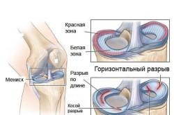 Изображение - Упражнения для суставов после травмы razryv-meniska-kolennogo-sustava-250x166