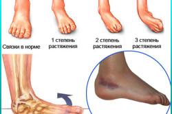 Степени растяжения сухожилий на ноге