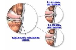 Изображение - Удары суставом кисти stepeni-rastyazenia-svazok-250x166